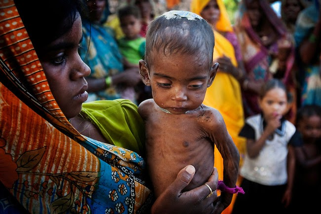 GS2 : Hunger and Malnutrition in India